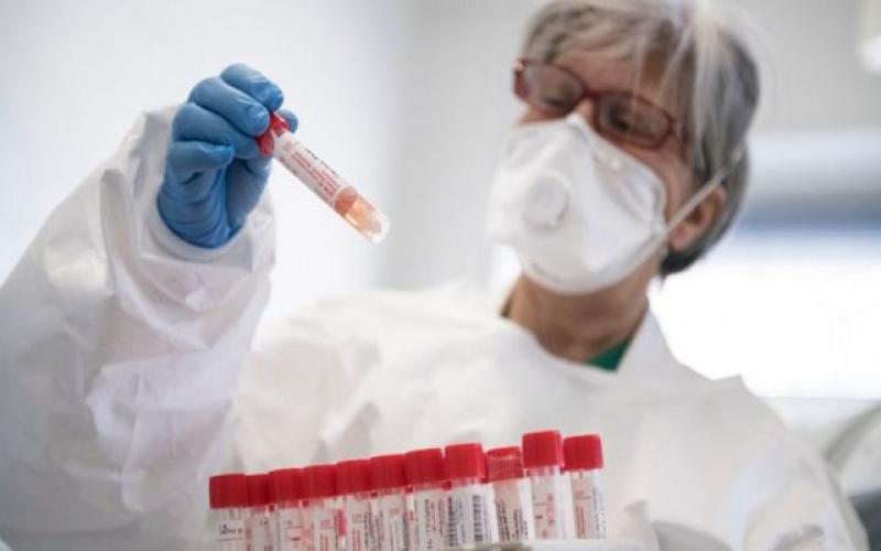 """Baş infeksionist: """"Testin düzgün götürülməməsi nəticəyə təsir edir"""""""